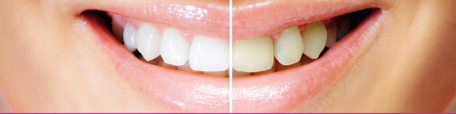 Teeth Whitening by Serenity Beauty